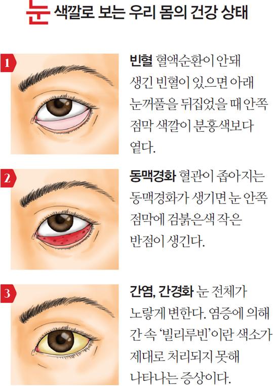 눈 색깔로 보는 우리 몸의 건강 상태 - 1. 빈혈 : 혈액순환이 안돼 생긴 빈혈이 있으면 아래 눈꺼풀을 뒤집었을 때 안쪽 점막 색깔이 분홍색보다 옅다. 2. 동맥경화 : 혈관이 좁아지는 동맥경화가 생기면 눈 안쪽 점막에 검붉은색 작은 반점이 생긴다. 3. 간염, 간경화 : 눈 전체가 노랗게 변한다. 염증에 의해 간 속 '빌리루빈'이란 색소가 제대로 처리되지 못해 나타나는 증상이다.